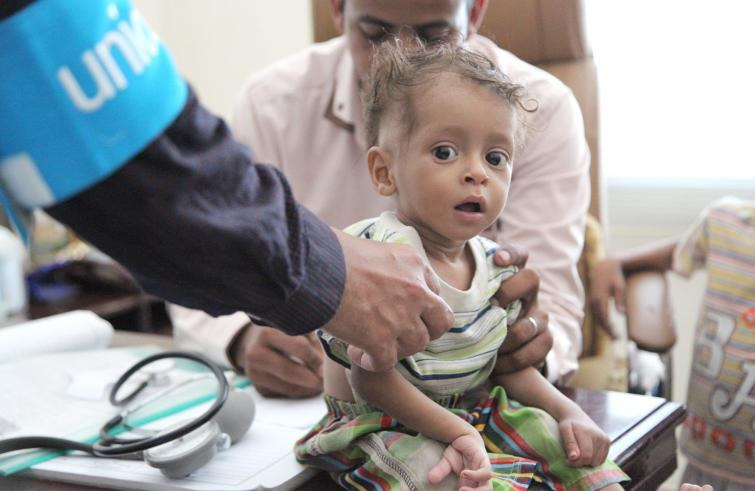 unicefyemen-child-malnutrition-755x491.jpg